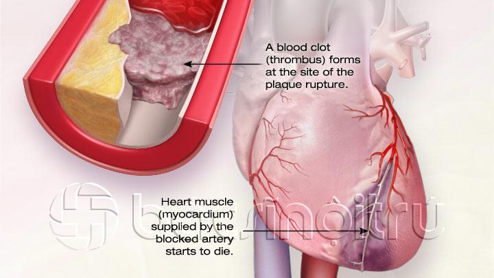 Cholesterol-and-CAD- nhồi máu cơ tim