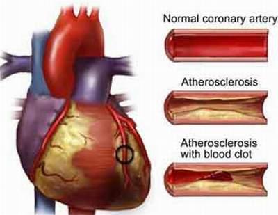 cholesterol và bệnh động mạch vành